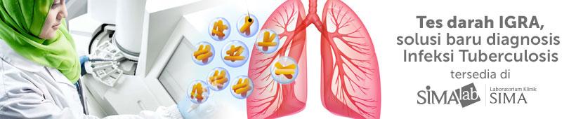 Tes darah TB IGRA